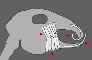 Schéma dentaire Patho